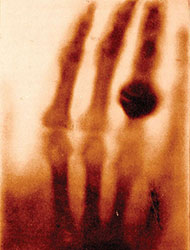 Wilhelm Rontgen took this radiograph of his wife's left hand on December 22, 1895, shortly after his discovery of X-rays.